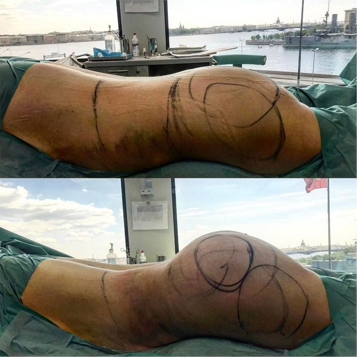 Липоскульптурирование: преимущества новой методики