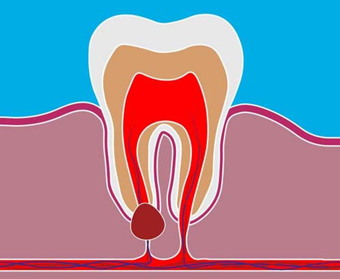 Инновационные технологии по удалению кисты зуба в клинике Ladent