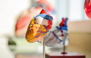 Лечение сердца в Германии