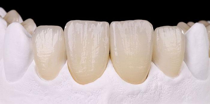 Имплантация зубов под ключ: этапы и особенности