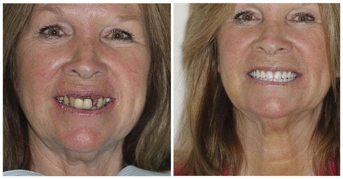 Зубы за один день - это реально!