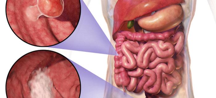 Достижения немецких врачей в лечении рака прямой кишки