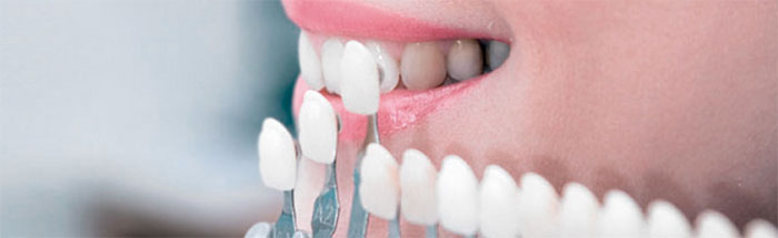 Протезирование зубов: специфика и особенности