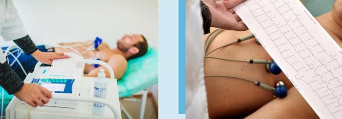 Электрокардиограмма(ЭКГ): показания к проведению и процедура