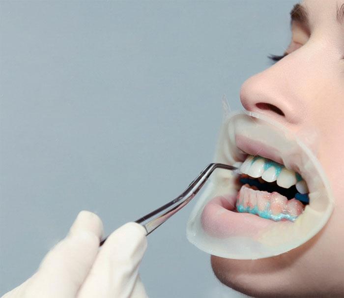 Стоматолог Попов Максим предлагает эффективную методику отбеливания зубов