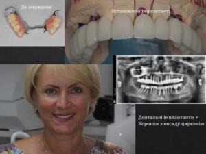 Имплантация зубов в Киеве - lukashuk.com.ua