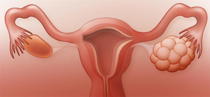 Синдром поликистозного яичника