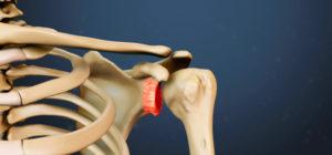 Как диагностировать болезни костей и суставов?
