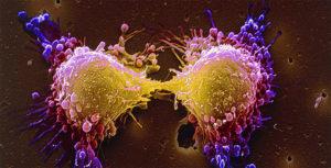 Признаки рака лимфоузлов