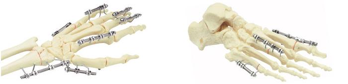 Разновидности хирургических инструментов