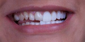 Что нужно знать, прежде чем установить зубные виниры