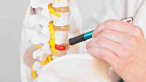 Лечение грыжи без операций