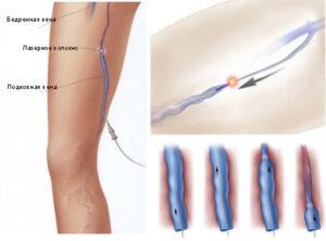 Лазерная коагуляция — современный способ лечения варикозного расширения вен