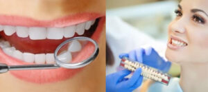 Новейшие методики в имплантации зубов