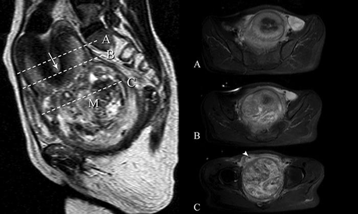 МРТ матки и яичников: как я нашла достойный медцентр?