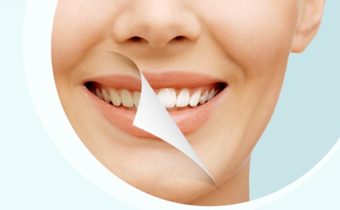 Стоматология ЛидерСтом: современные подходы к лечению
