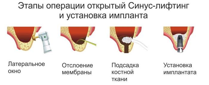 Какие стоматологические услуги сейчас пользуются наибольшей популярностью?