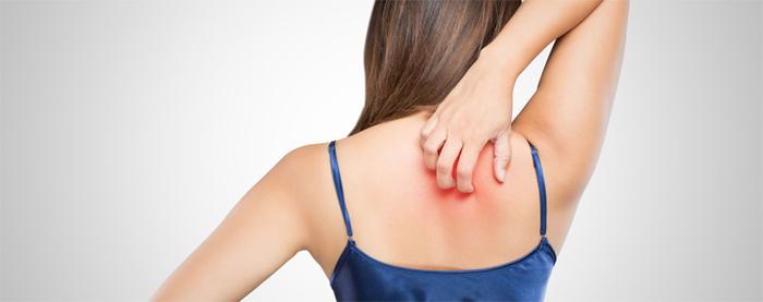 Топ-5 методов лечения псориаза: проверенные способы борьбы с неприятной болезнью