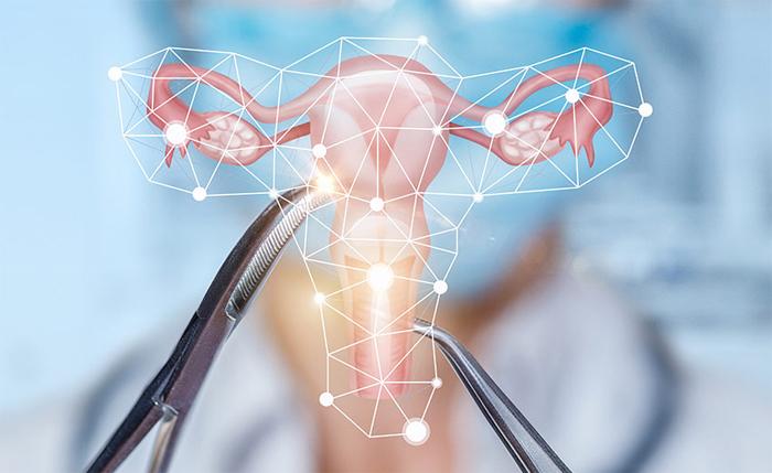 Дисплазия шейки матки: специфика течения и лечения