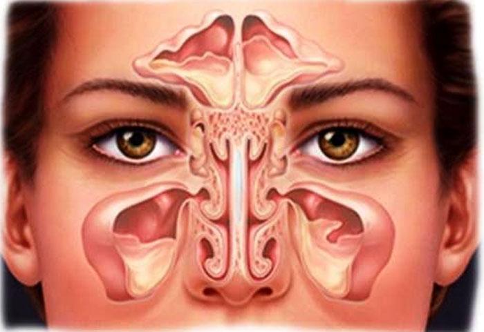 Лечение заболеваний носа в медицинском центре Синай