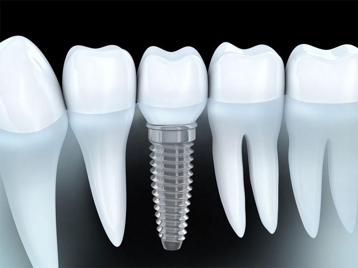Имплантация зуба: виды, особенности и показания