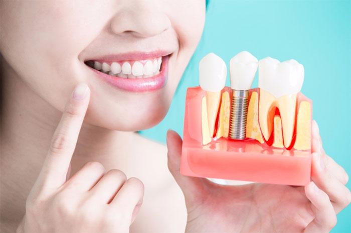 Имплантация зубов: особенности, правила и специфика