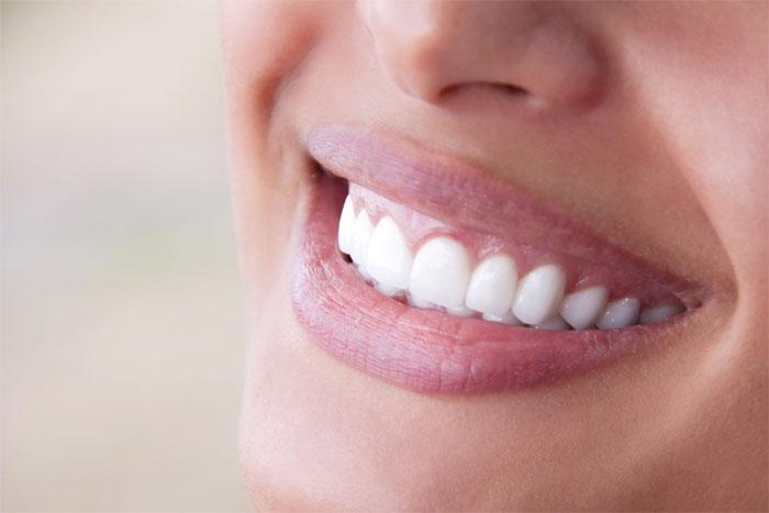 Как подобрать зубные мосты?