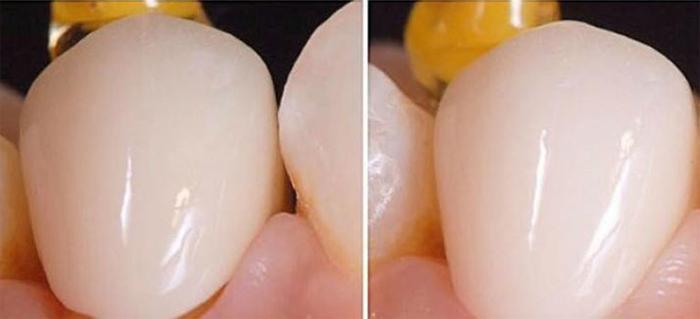 Коронка на зуб: особенности и специфика процедуры