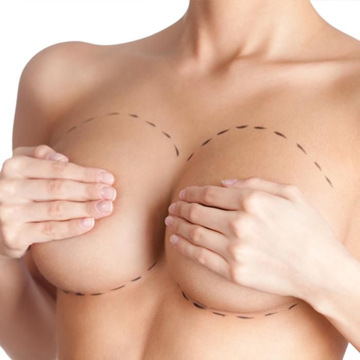 Сколько стоит грудь