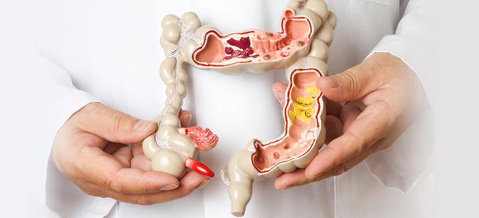 Современные методики лечения кишечных болезней